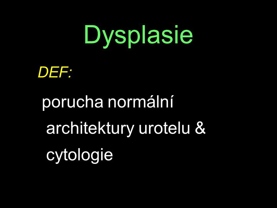 Dysplasie DEF: porucha normální architektury urotelu & cytologie