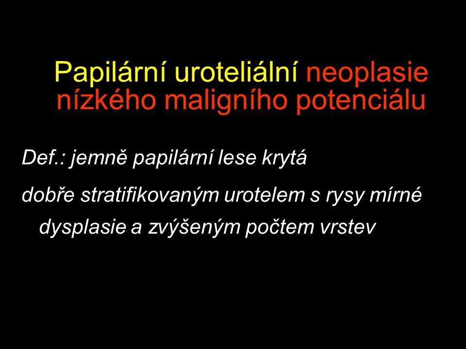 Papilární uroteliální neoplasie nízkého maligního potenciálu