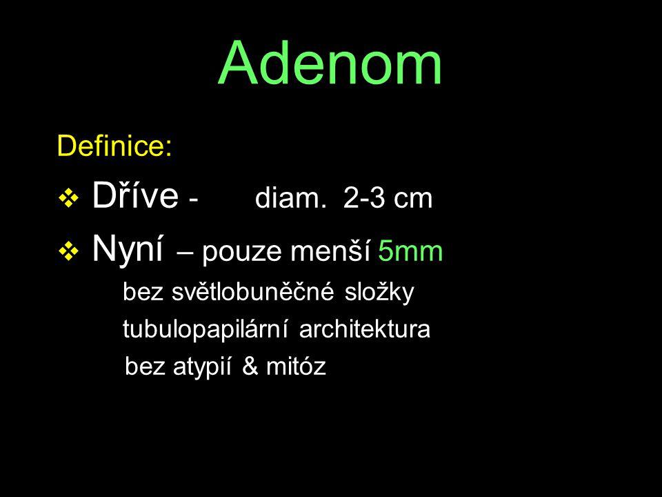 Adenom Dříve - diam. 2-3 cm Nyní – pouze menší 5mm Definice: