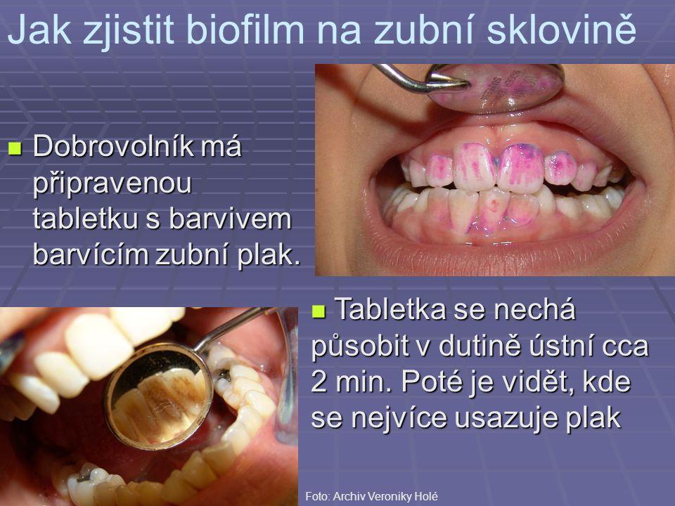 Jak zjistit biofilm na zubní sklovině