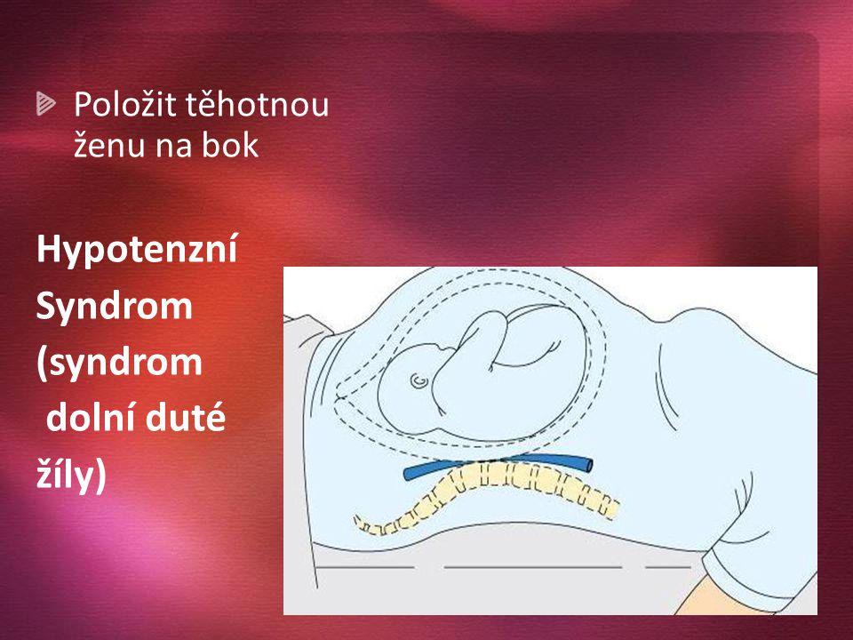Hypotenzní Syndrom (syndrom dolní duté žíly)