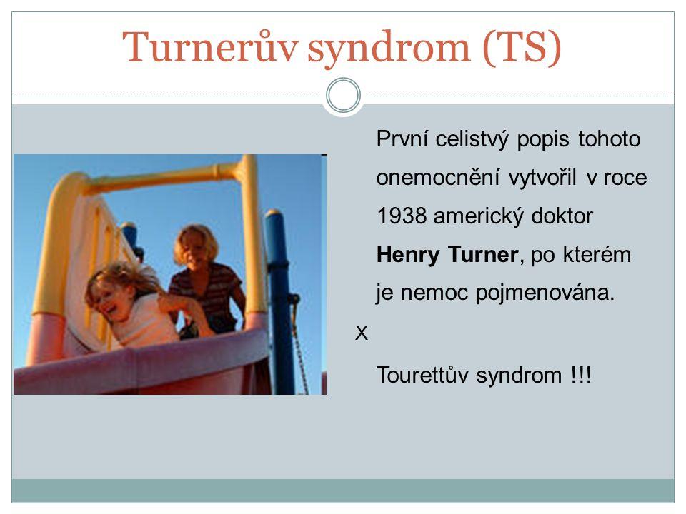 Turnerův syndrom (TS) První celistvý popis tohoto onemocnění vytvořil v roce 1938 americký doktor Henry Turner, po kterém je nemoc pojmenována.