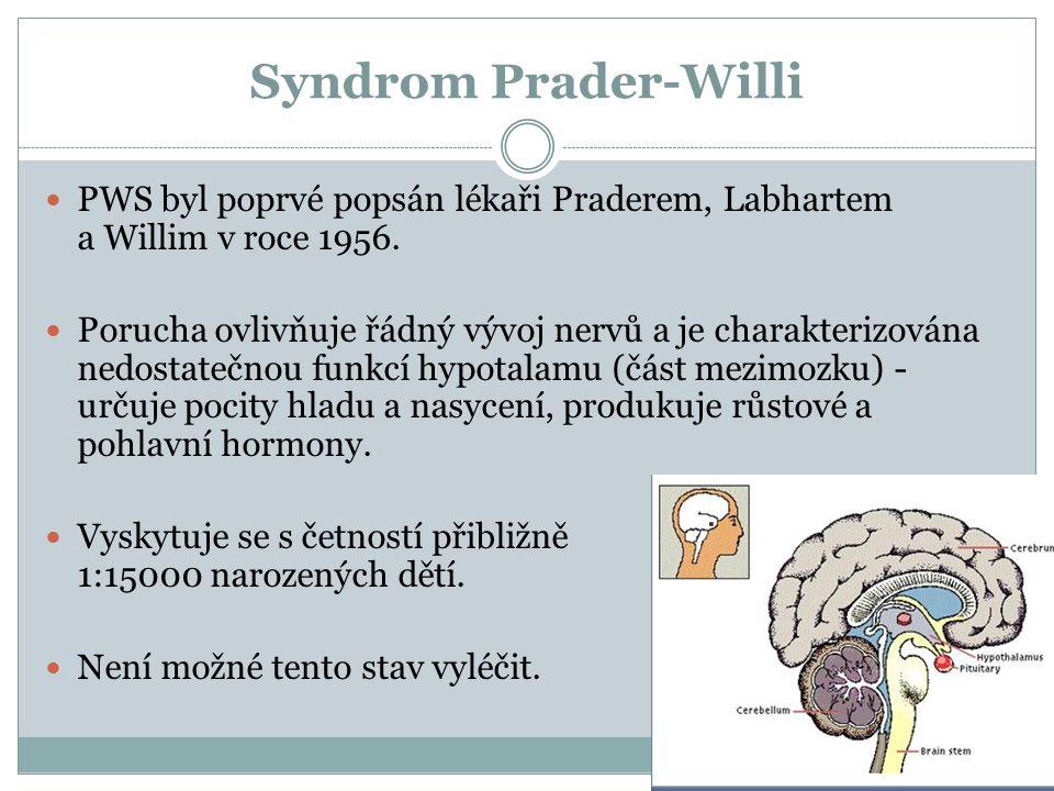 Syndrom Prader-Willi PWS byl poprvé popsán lékaři Praderem, Labhartem a Willim v roce 1956.