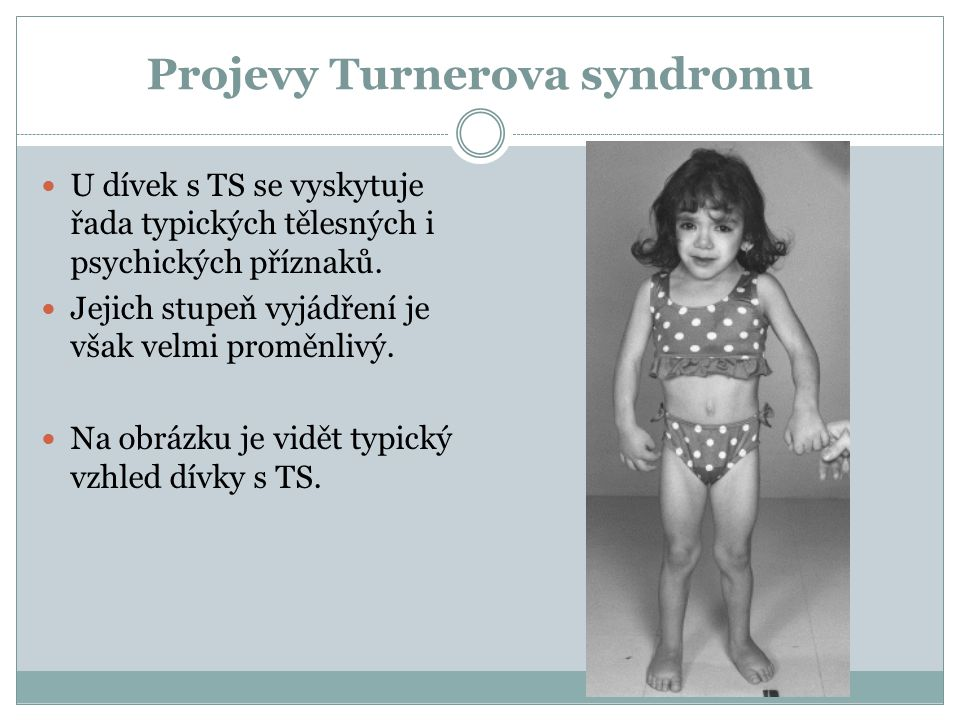 Projevy Turnerova syndromu