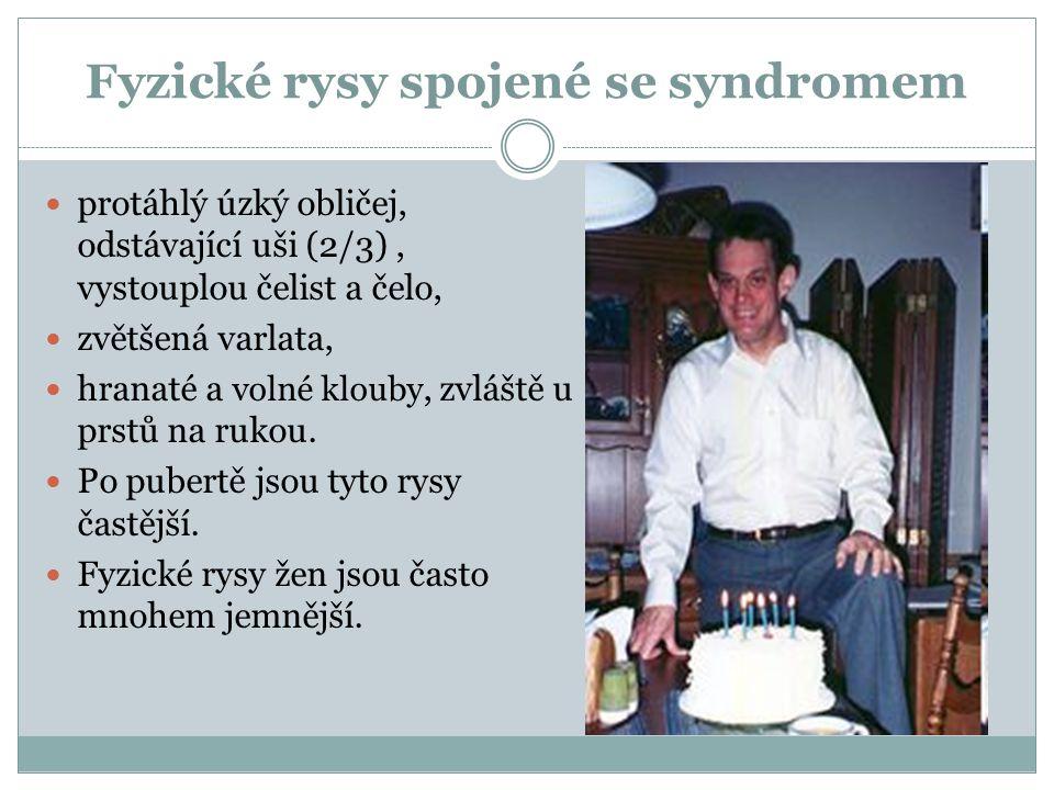 Fyzické rysy spojené se syndromem