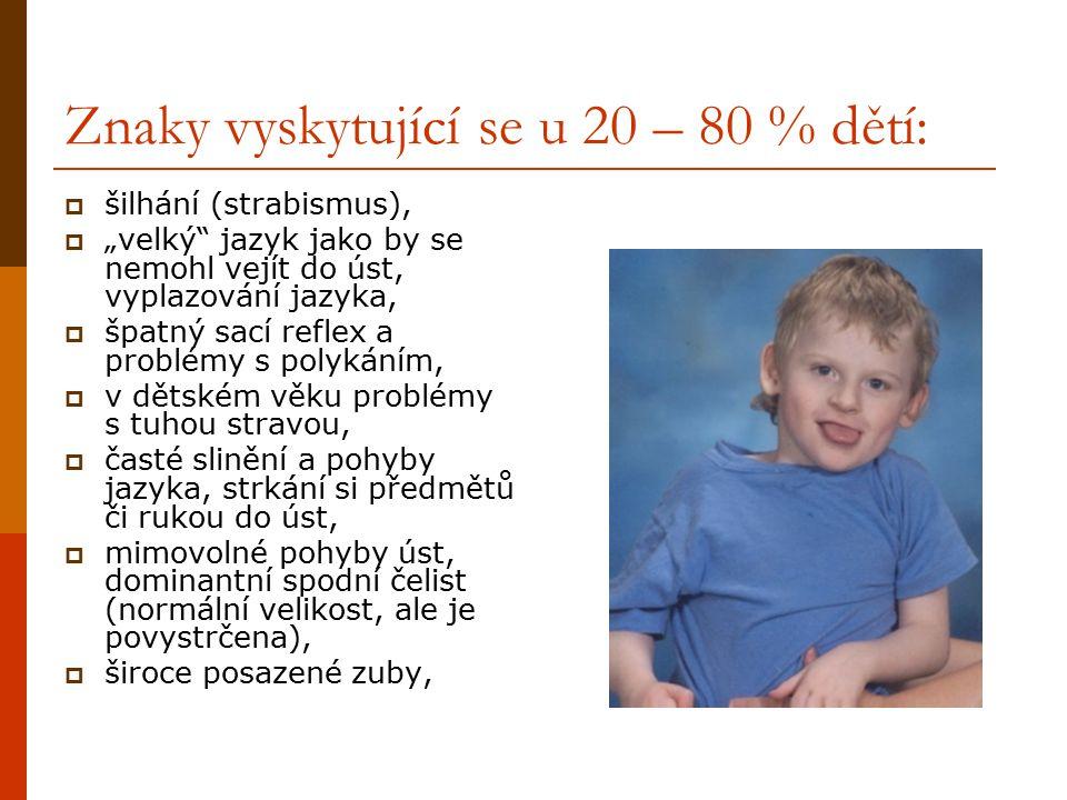 Znaky vyskytující se u 20 – 80 % dětí: