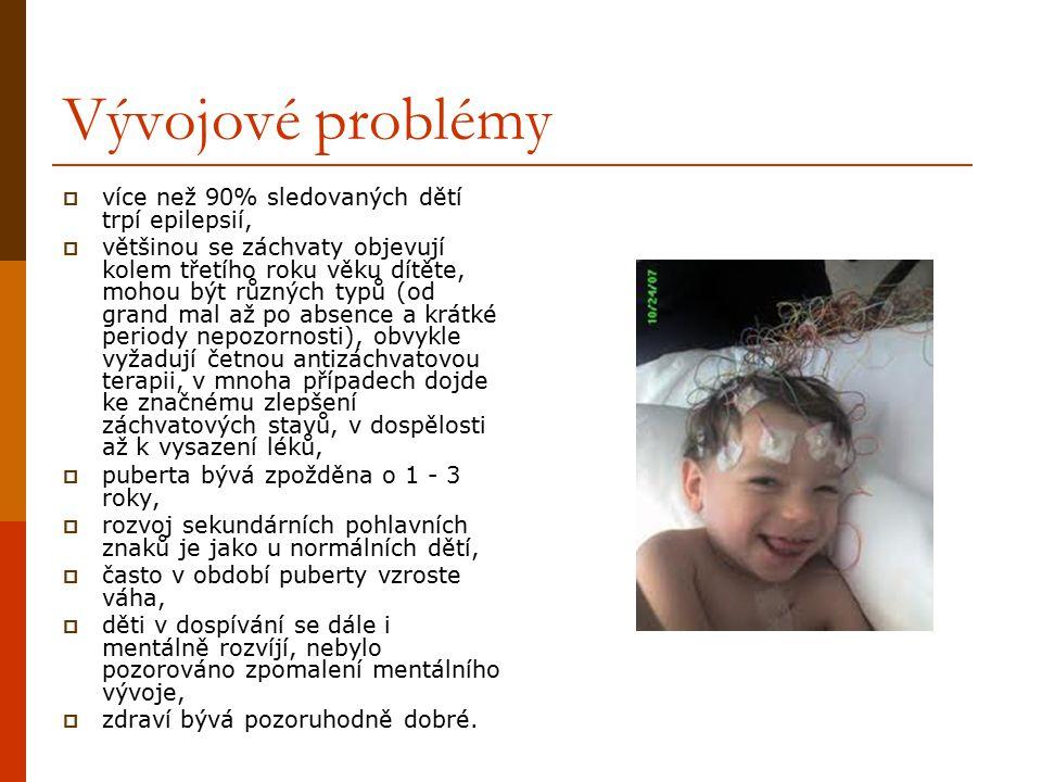 Vývojové problémy více než 90% sledovaných dětí trpí epilepsií,