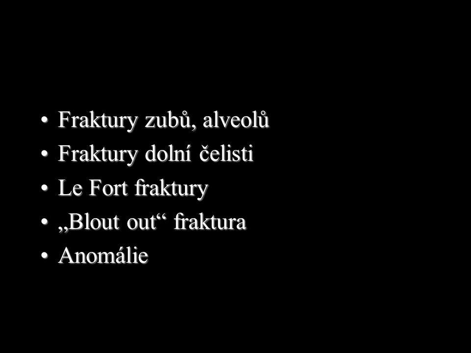 """Fraktury zubů, alveolů Fraktury dolní čelisti Le Fort fraktury """"Blout out fraktura Anomálie"""