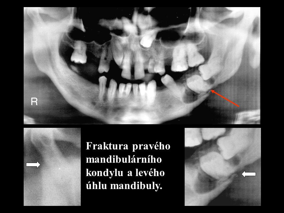 Fraktura pravého mandibulárního kondylu a levého úhlu mandibuly.