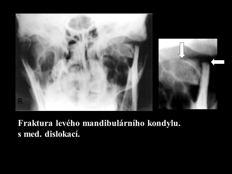 Fraktura levého mandibulárního kondylu. s med. dislokací.