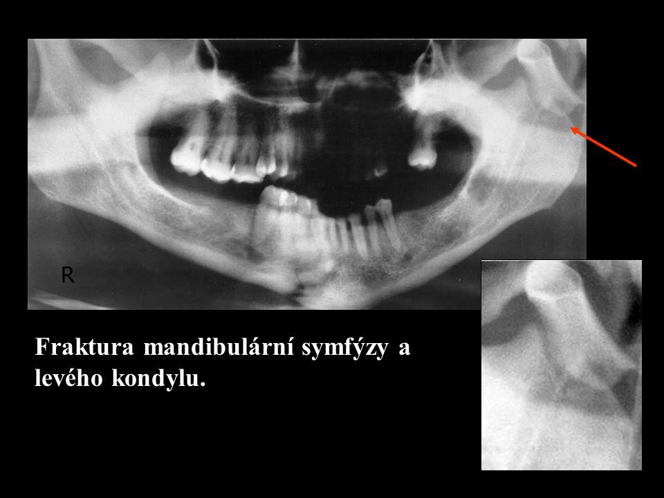 Fraktura mandibulární symfýzy a levého kondylu.