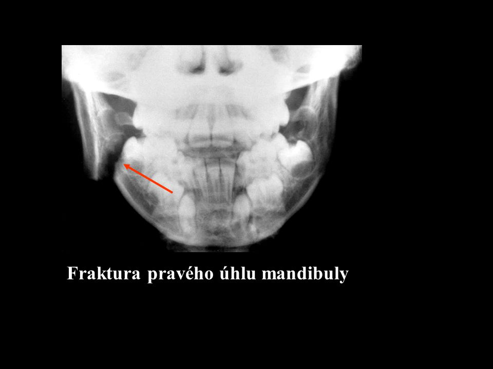 Fraktura pravého úhlu mandibuly