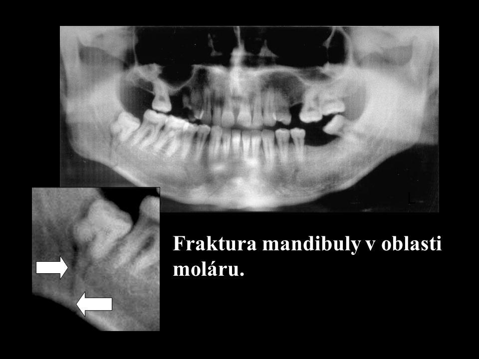 Fraktura mandibuly v oblasti moláru.