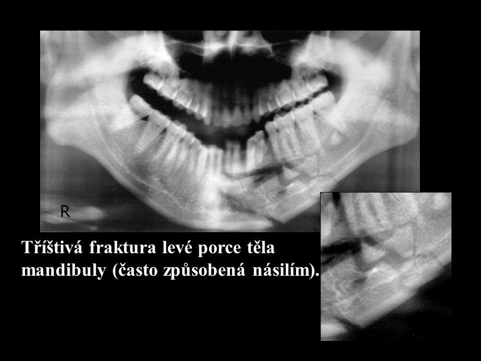 Tříštivá fraktura levé porce těla mandibuly (často způsobená násilím).