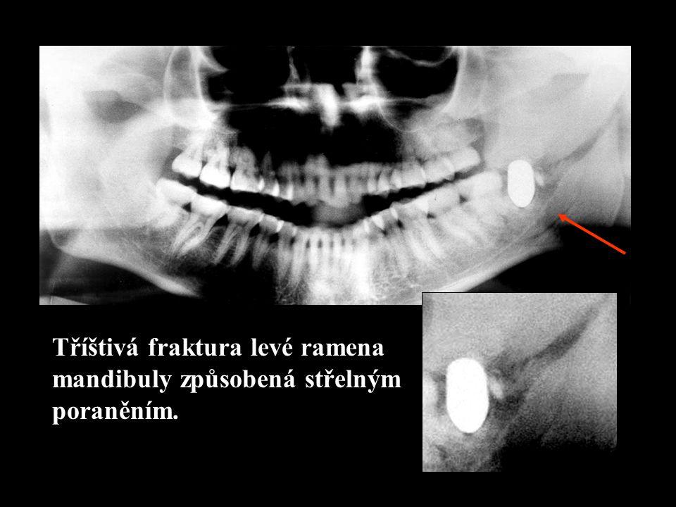 Tříštivá fraktura levé ramena mandibuly způsobená střelným poraněním.
