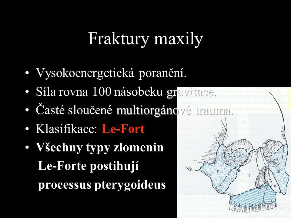 Fraktury maxily Vysokoenergetická poranění.