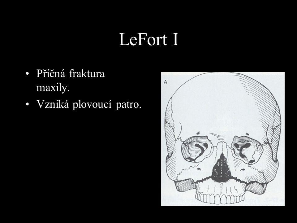 LeFort I Příčná fraktura maxily. Vzniká plovoucí patro. LeFort I: