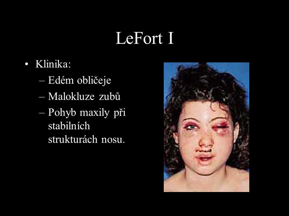 LeFort I Klinika: Edém obličeje Malokluze zubů