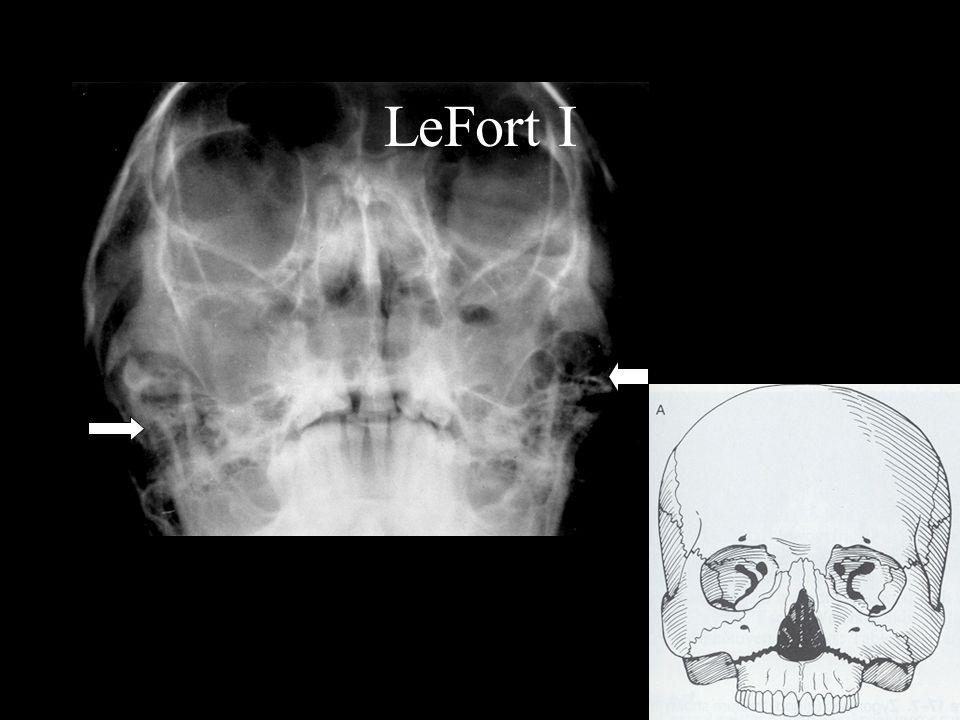 LeFort I R