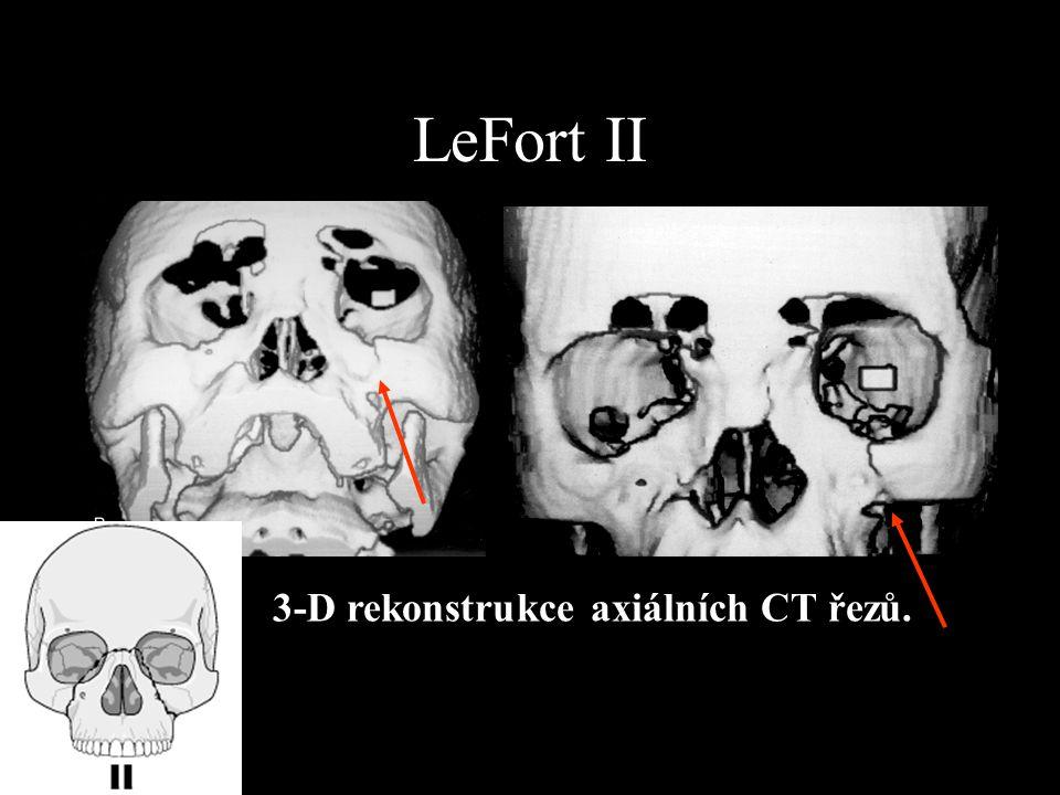 LeFort II 3-D rekonstrukce axiálních CT řezů.
