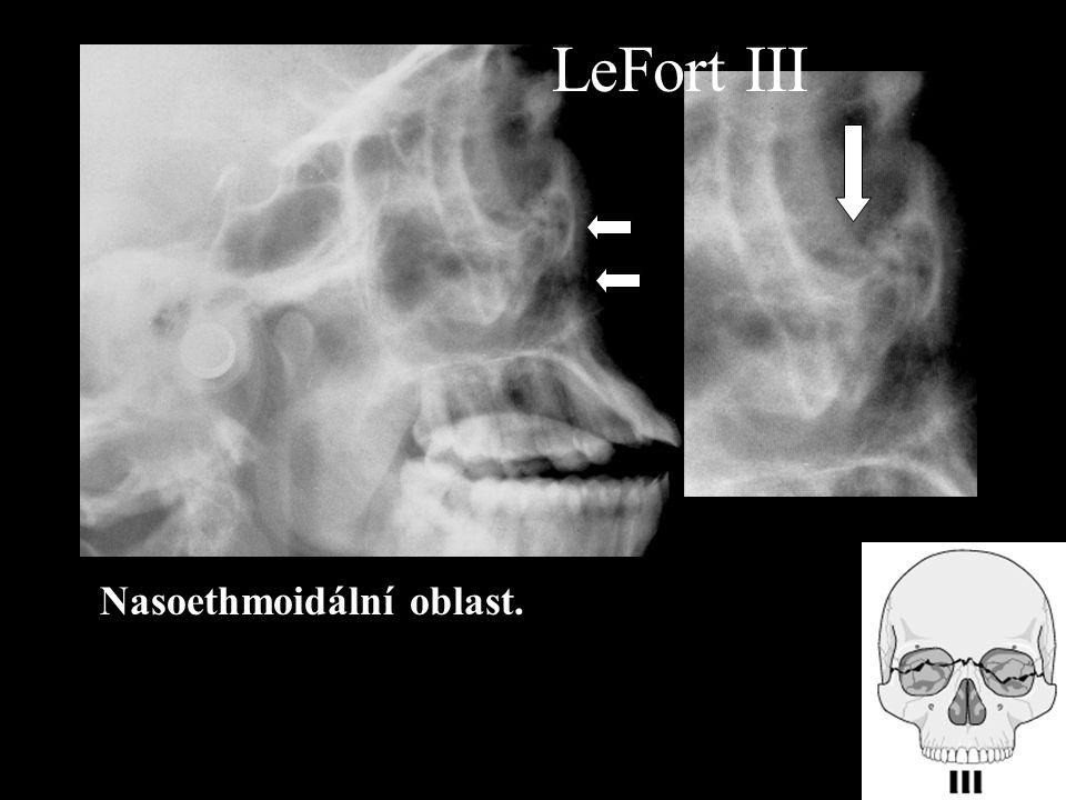 LeFort III Nasoethmoidální oblast.