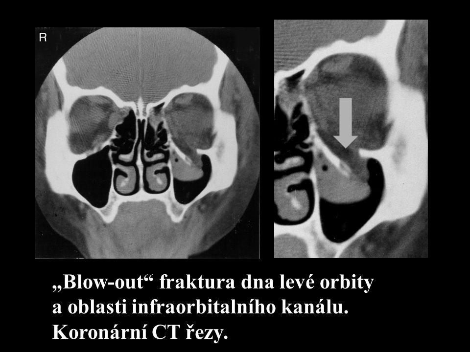 """Blow-out fraktura dna levé orbity"