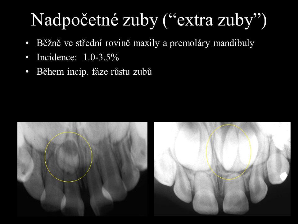 Nadpočetné zuby ( extra zuby )