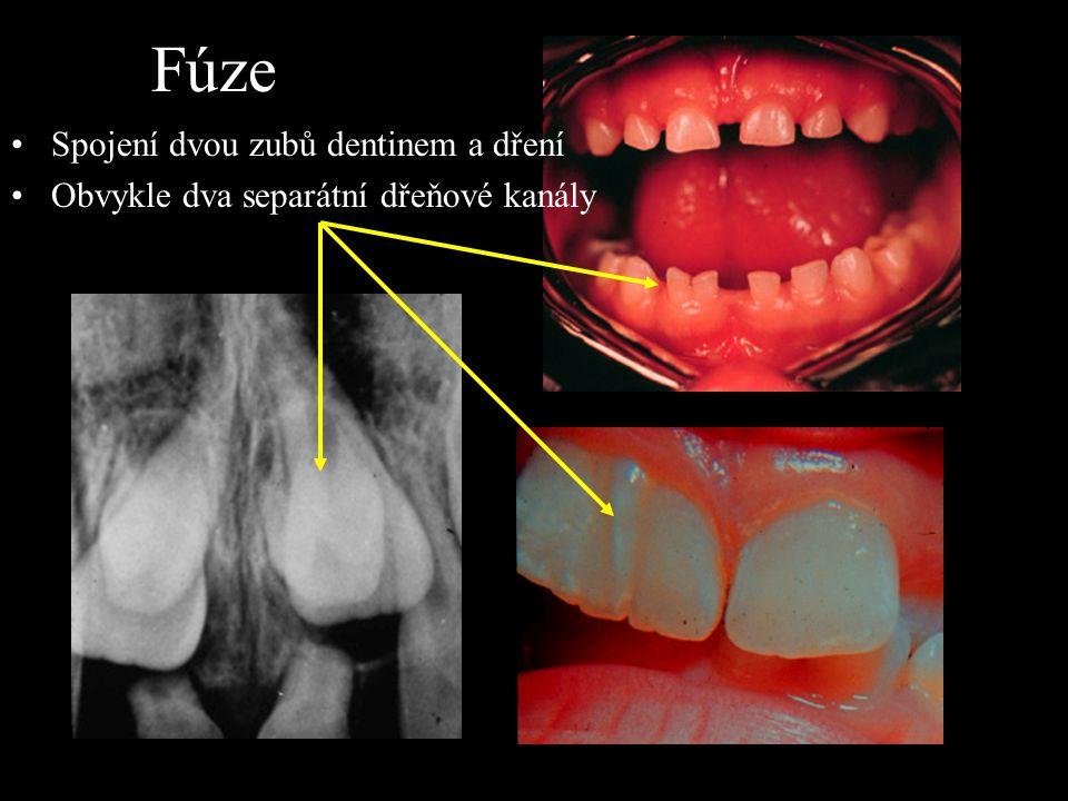Fúze Spojení dvou zubů dentinem a dření