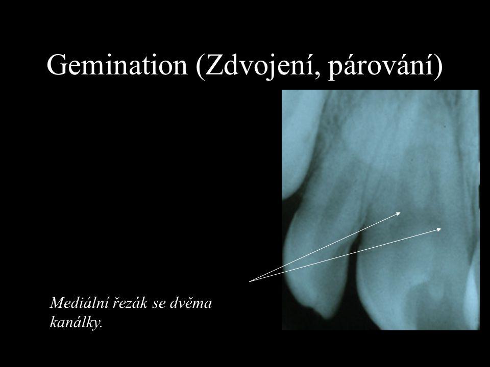 Gemination (Zdvojení, párování)