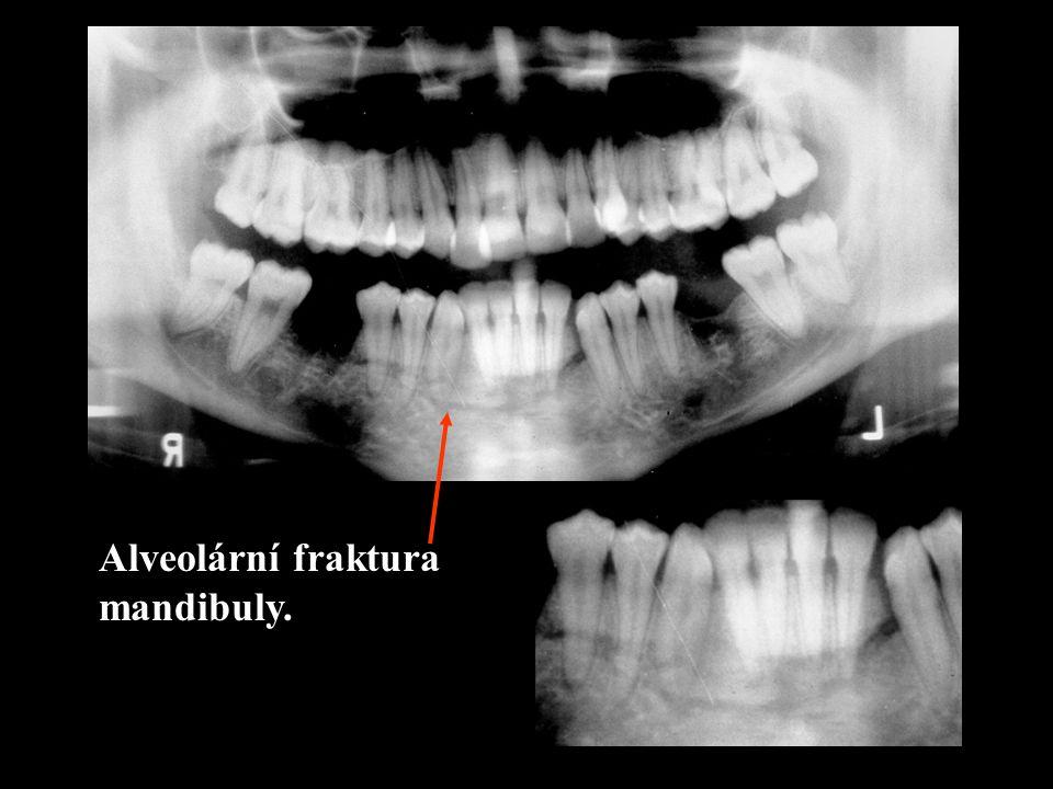 Alveolární fraktura mandibuly.