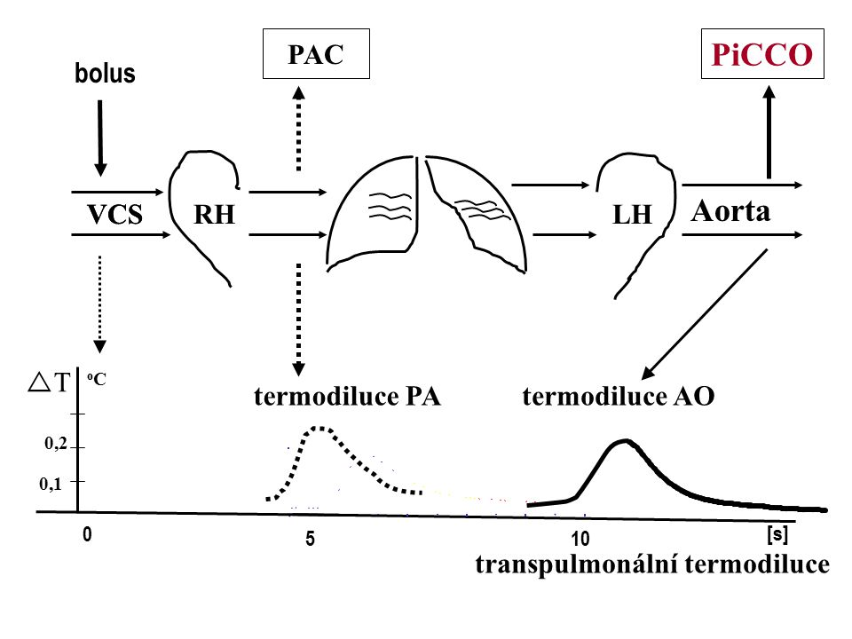PiCCO Aorta PAC bolus VCS VCS RH LH T termodiluce PA termodiluce AO