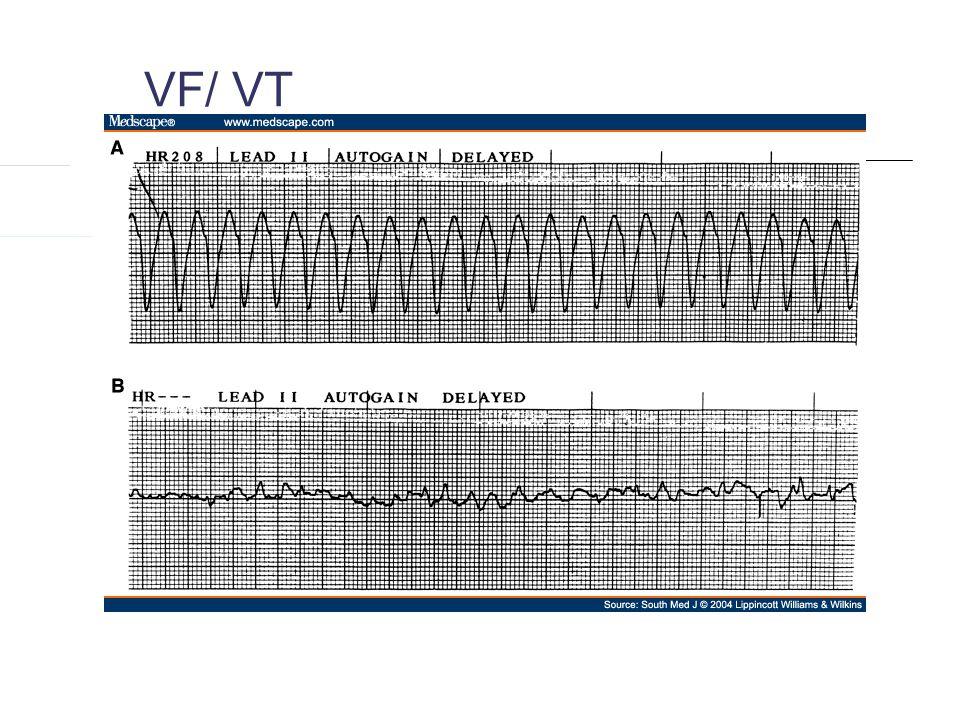 VF/ VT