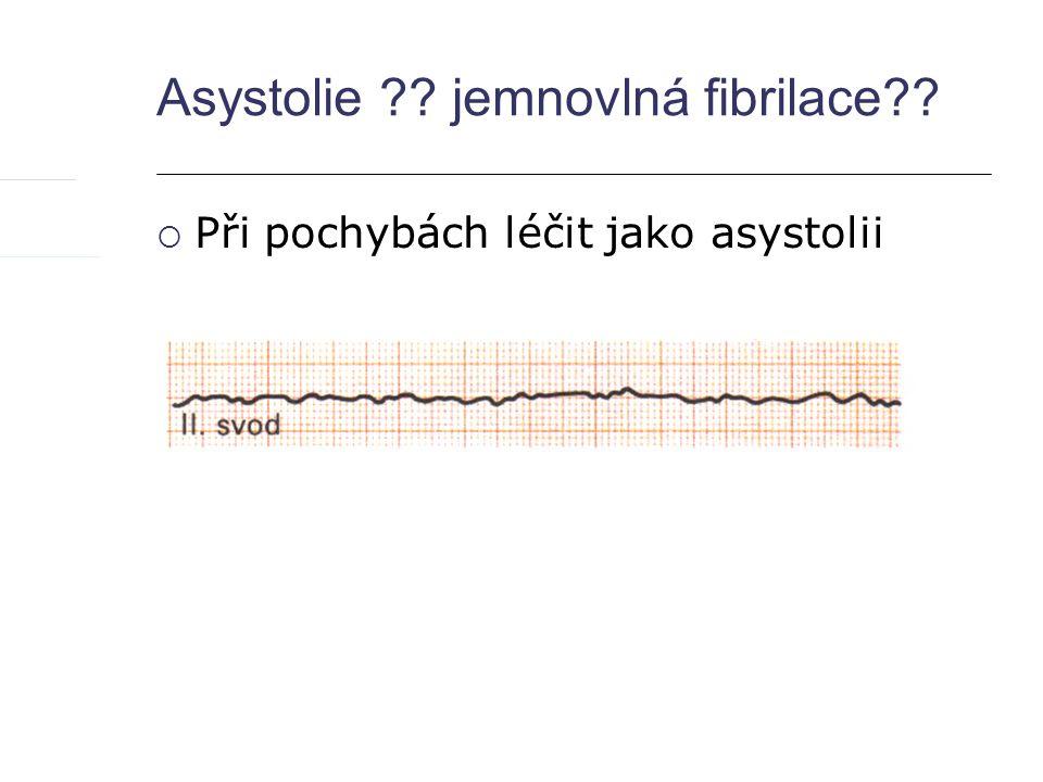 Asystolie jemnovlná fibrilace