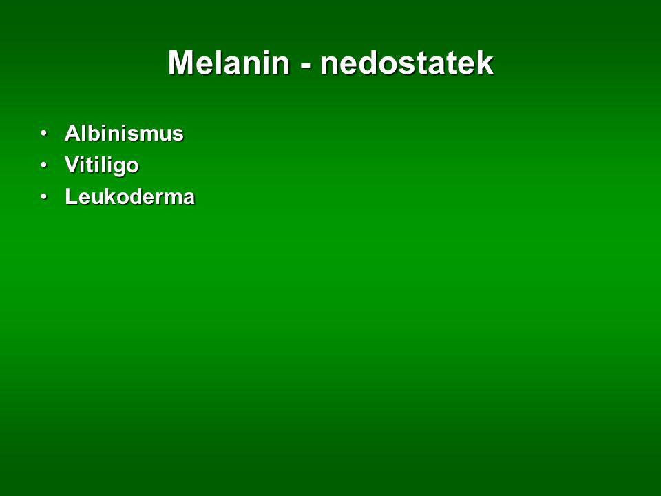 Melanin - nedostatek Albinismus Vitiligo Leukoderma