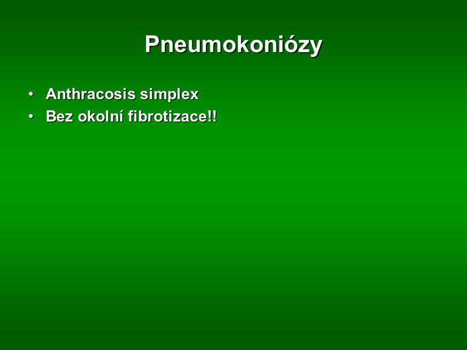 Pneumokoniózy Anthracosis simplex Bez okolní fibrotizace!!