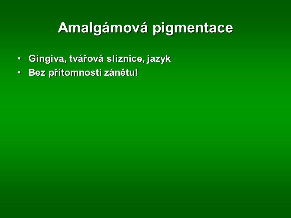 Amalgámová pigmentace