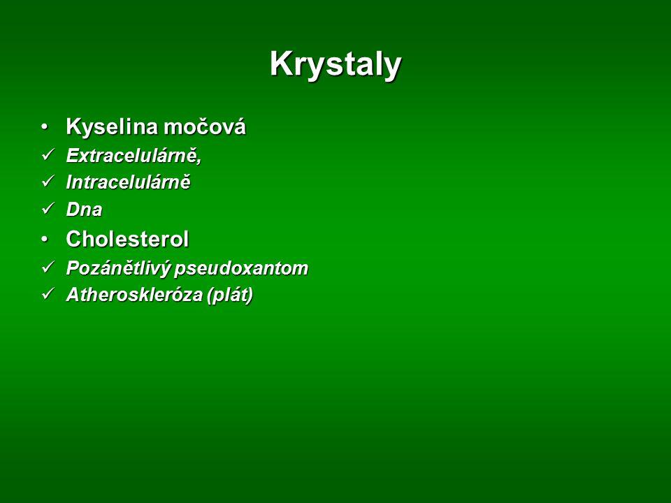Krystaly Kyselina močová Cholesterol Extracelulárně, Intracelulárně