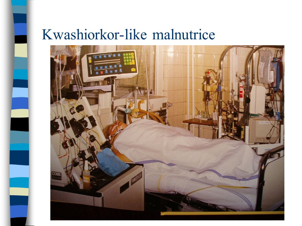 Kwashiorkor-like malnutrice