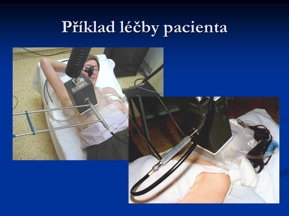 Příklad léčby pacienta
