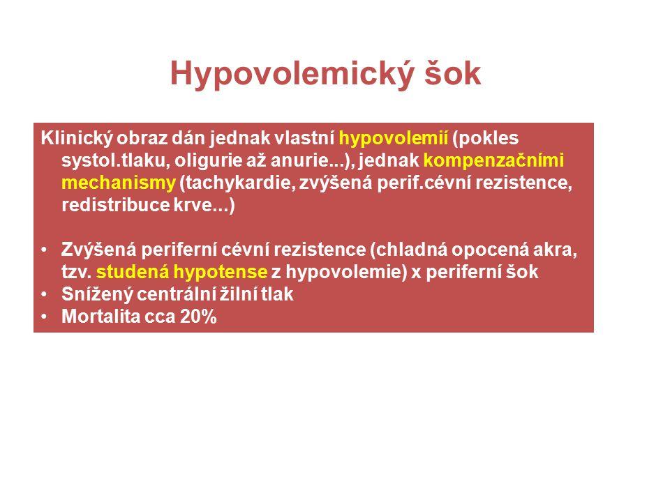 Hypovolemický šok