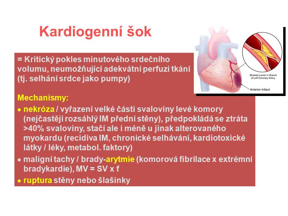 Kardiogenní šok = Kritický pokles minutového srdečního