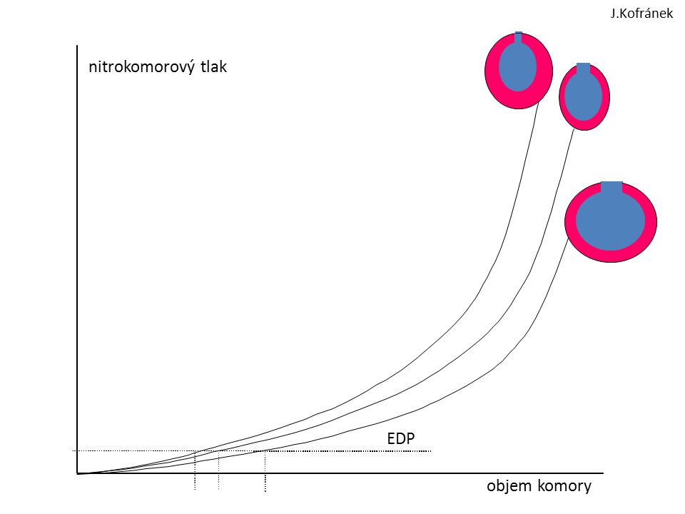 J.Kofránek nitrokomorový tlak EDP objem komory