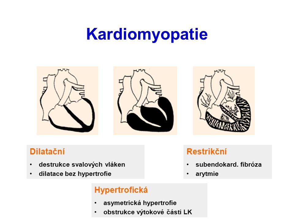 Kardiomyopatie Dilatační Restrikční Hypertrofická