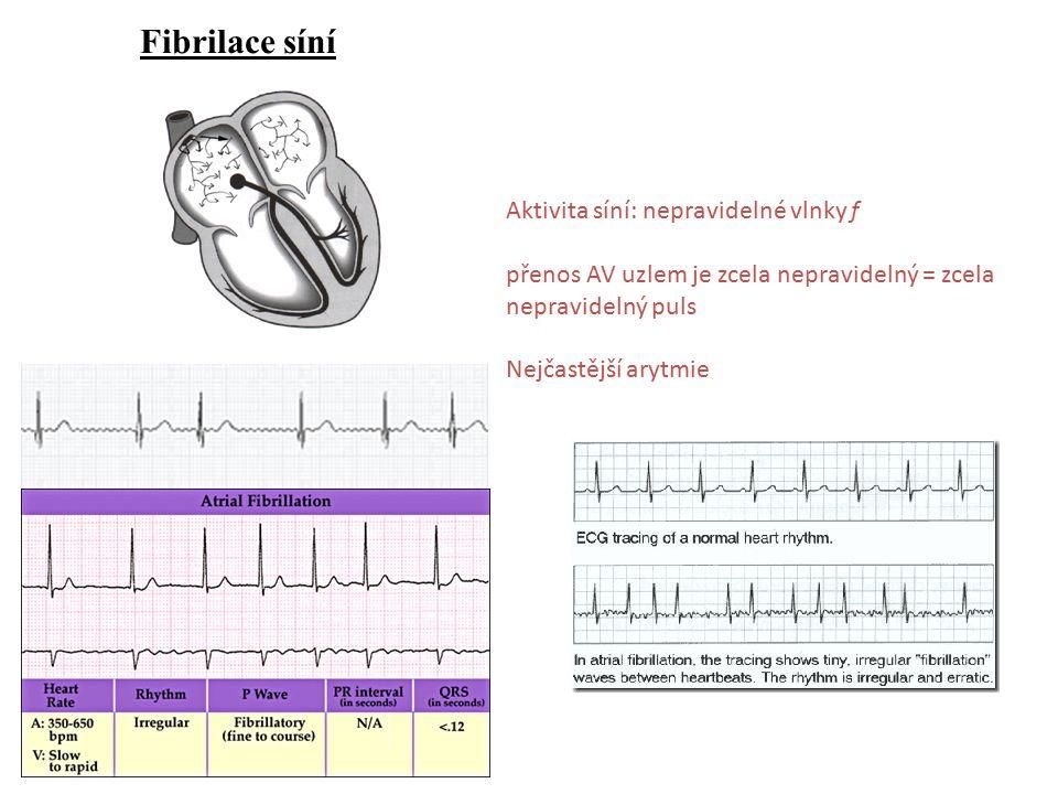 Fibrilace síní Aktivita síní: nepravidelné vlnky f