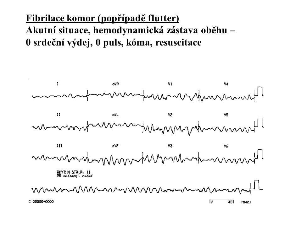 Fibrilace komor (popřípadě flutter)