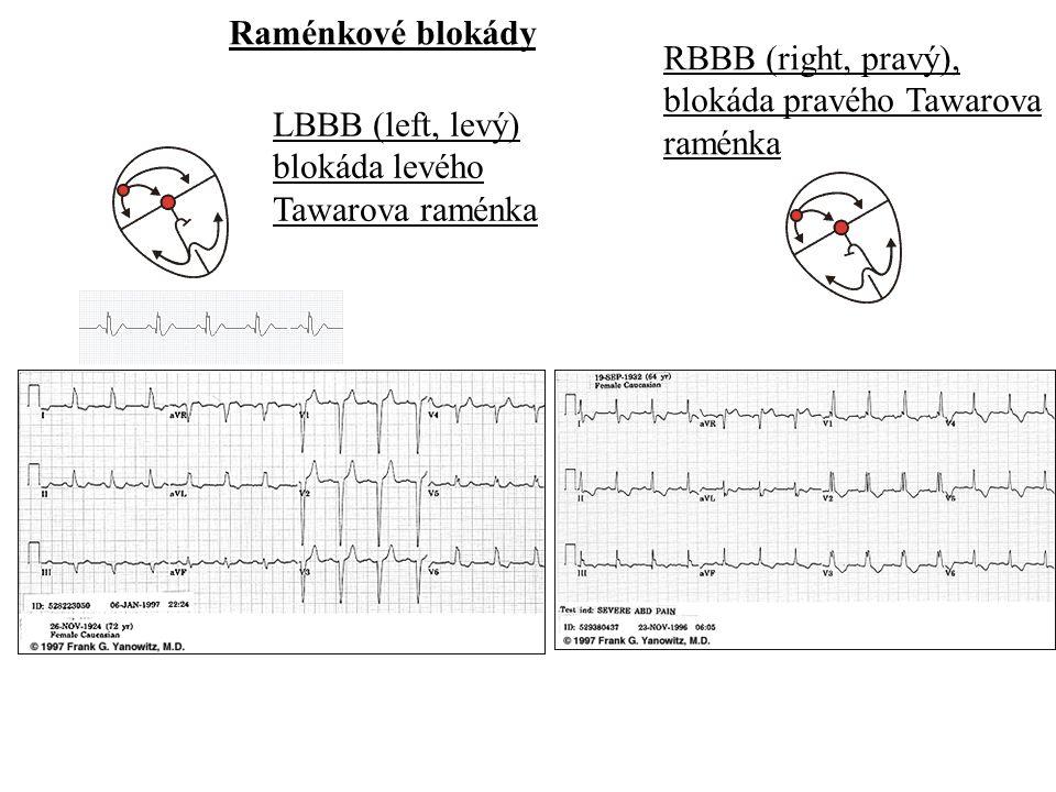 Raménkové blokády RBBB (right, pravý), blokáda pravého Tawarova. raménka. LBBB (left, levý) blokáda levého.