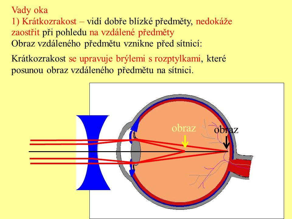 Vady oka 1) Krátkozrakost – vidí dobře blízké předměty, nedokáže. zaostřit při pohledu na vzdálené předměty.
