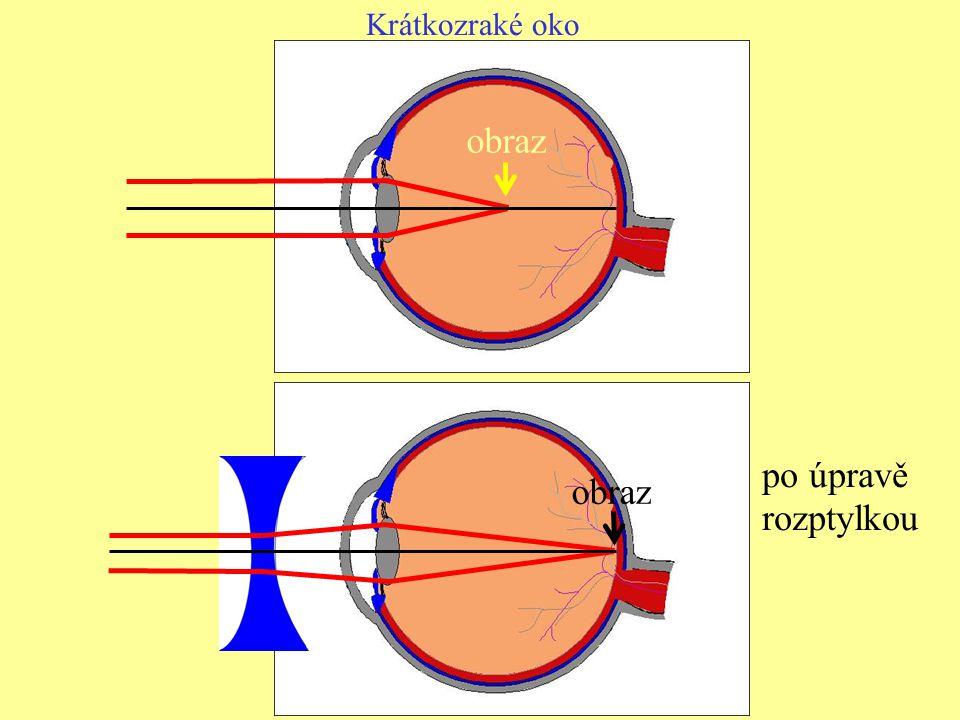Krátkozraké oko obraz po úpravě rozptylkou obraz