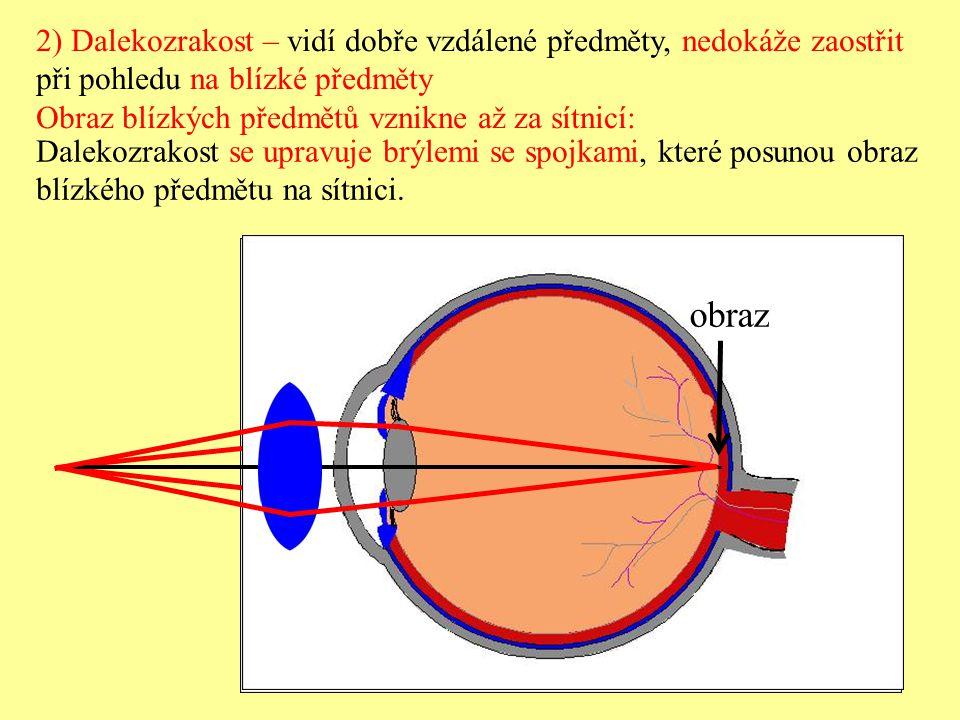 2) Dalekozrakost – vidí dobře vzdálené předměty, nedokáže zaostřit při pohledu na blízké předměty