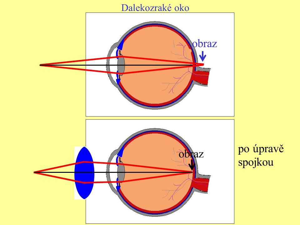 Dalekozraké oko obraz po úpravě spojkou obraz
